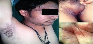The Truth About HSV   Herpes simplex