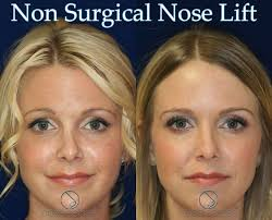 best hair for wide nose 7 best non surgical nose job for wide nose images on pinterest