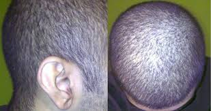 diffuse hair loss and stress u2013 your new hairstyle photo blog