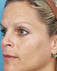 san diego sun damage treatment avalon laser carlsbad