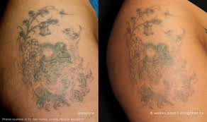 laser tattoo removal michigan by face fda approved