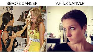 short hairstyles for women prior to chemo because of your short hair ashley hackshaw lil blue boo