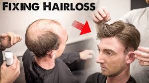 thining hair large ears men mens hairloss treatment 2 0 amazing hairstyle transformation