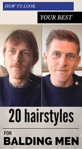 images of balding men haircuts how to look your best 20 hairstyles for balding men zoomzee org