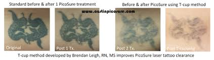 austinpicosure com a tattoo removal nurse u0027s notes laser tattoo