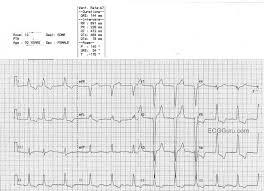 strain pattern ecg meaning left ventricular hypertrophy ecg guru instructor resources