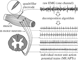 analysis of intramuscular electromyogram signals philosophical