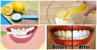 Natural Ways To Whiten Your Teeth Natural Ways To Whiten Your Teeth At Home Neopress