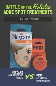 does prids work on ingrown hairs thank us later an immediate cure for ingrown hairs cysts bad