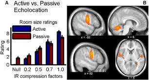 Echolocation For The Blind Neuroscience Shows Blind People Can U201csee U201d A Physical Space By