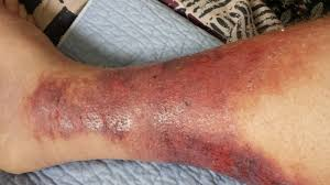 bubbamike u0027s ramblings cellulitis warning graphic photos in this