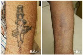 laser tattoo removal here are some facts about you need to know