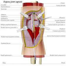 Anatomy Of The Knee Knee Posterior Approach Approaches Orthobullets Com