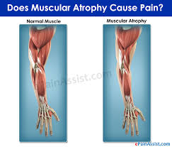 muscular atrophy causes symptoms treatment diet