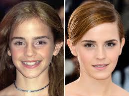emma watson looks like emma watson before and after beautyeditor