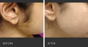 hair removal with a lifetime guarantee an excellent all natural
