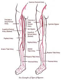 Foot Vascular Anatomy Treatment And Surgery For Leg Pain And Peripheral Arterial Disease