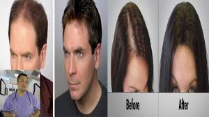 Best Product Hair Loss Best Product For Hair Loss Hair Loss Treatment That Works Youtube