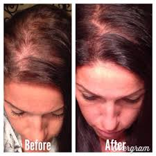 Stem Cells Hair Loss Having Problems With Hair Loss Our Hydrolyzed Collagen Protein