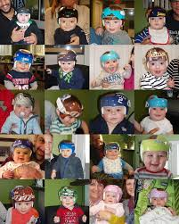 doc band wraps fundraiser by seth kaplan doc band helmet wraps for children