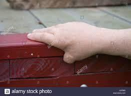 Table Saw Injuries Thumb Injuries Stock Photos U0026 Thumb Injuries Stock Images Alamy