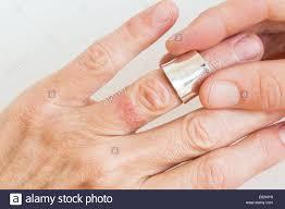 wedding ring dermatitis contact dermatitis on finger stock photo royalty free image