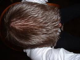 anyone who had eliminated side effects of finasteride with lower