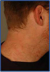 laser tattoo removal in orange county torrance and la