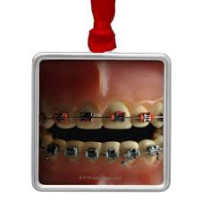 dental braces ornaments keepsake ornaments zazzle