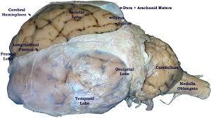 Sheep Heart Anatomy Quiz Lab 9 U2014sheep Brain U2014labeled