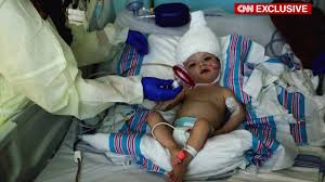 family video thanksgiving hours for separated twins u0027 parents a special thanksgiving cnn