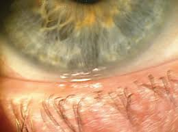 Most Comfortable Contacts For Astigmatism Review Of Cornea And Contact Lenses U003e Daily Disposables Effective