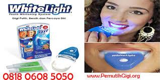 Berapa Pemutih Gigi Whitelight cara memutihkan gigi dengan cepat 0853 2010 5050 cara