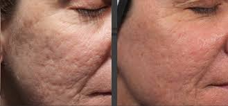 acne scars before and after by dr davin lim lasers u0026 lifts