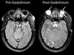 flashing lights in eye stroke eye could provide window to the brain after stroke preliminary