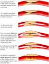 des artères <b>coronaires</b>.