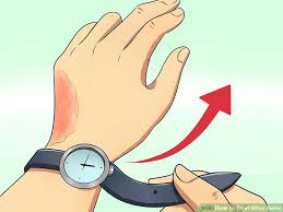 Home Remedies For Small Burns - how to treat minor burns 11 steps with pictures wikihow
