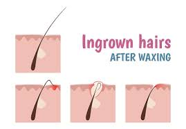 types of ingrown hair how to remove ingrown hairs with tweezers hair free life