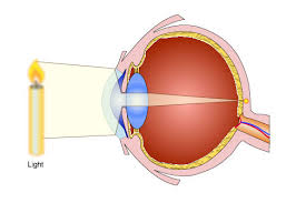 What Structure Of The Eye Focuses Light On The Retina Use Of Lenses For Correcting Vision Pass My Exams Easy Exam