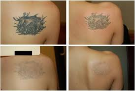 rejuvi tattoo removal cape town tattoo removal cream price in