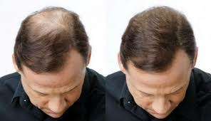 membuat minyak kemiri untuk rambut botak rambut botak