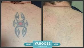 tattoo removal before and after pictures vamoose chicago