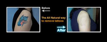 top 3 natural remedies for tattoo removal healthy news 2016