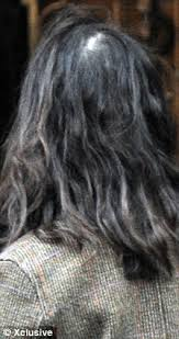 thinning hair in women on top of head nigella lawson s thinning on top can be avoided if you feed your