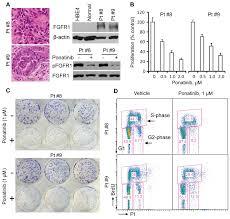 novel fgfr inhibitor ponatinib suppresses the growth of non small