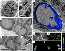 deep nuclear invaginations are linked to cytoskeletal filaments
