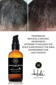 Best Product Hair Loss The 12 Best Images About Healthy Hair On Pinterest Grow Hair
