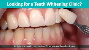 teeth whitening clinics sutton coldfield sutton coldfield teeth