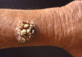 How Do You Get Planters Warts by Warts American Skin Association