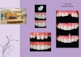 pedodontics thesis topics dissertation in orthodontics library dissertation in orthodontics